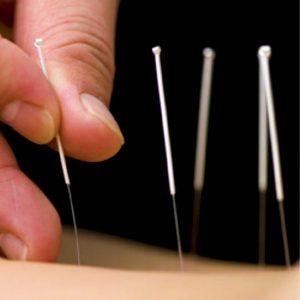 Akupunkturni tretman protiv bolova koji se radi u centru za pravi tretman u Požarevcu