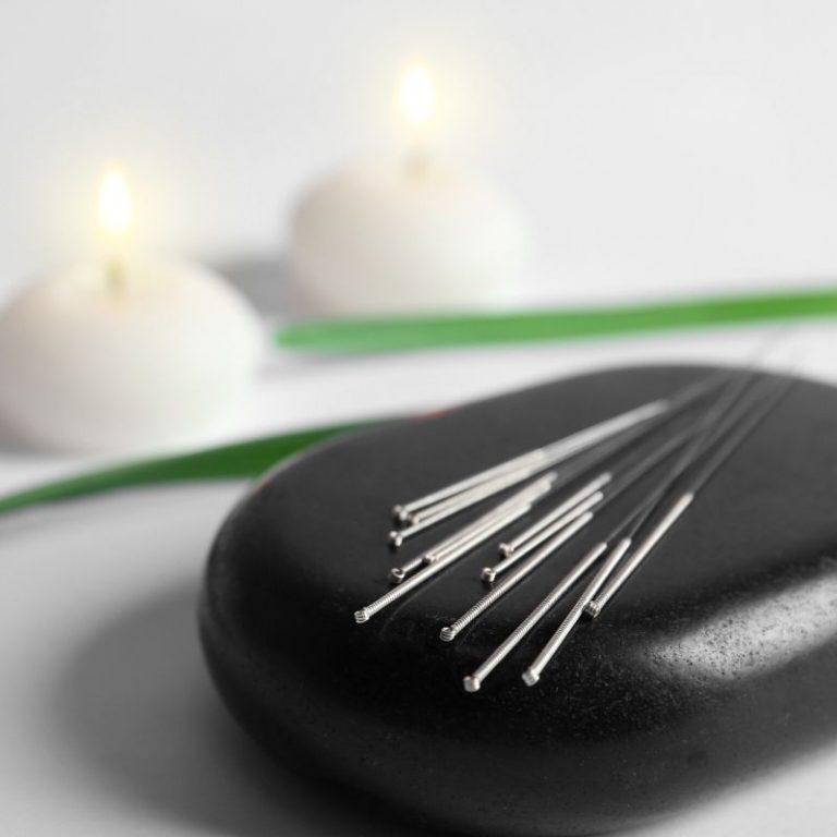 Akupunktura je efikasna tehnika u tretmanima protiv bolova koje koristimo u centru za pravi tretman u Požarevcu